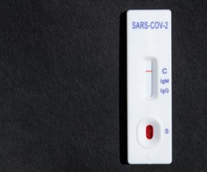 COVID-19 Diagnostics Market – Global Outlook and Forecast 2021-2026
