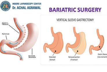 Dr. Achal Agrawal Specialist at Indore Laparoscopy Center